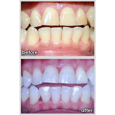 Impressionz Dental Care
