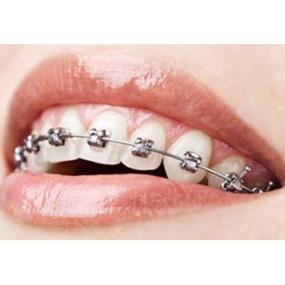 Braces – Orthodontics