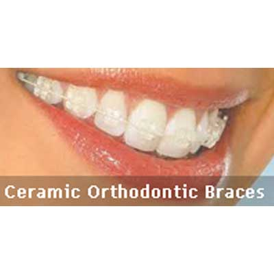 Ceramic Orthodontic Braces