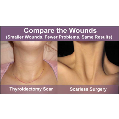 Thyroid and Parathyroid tumors