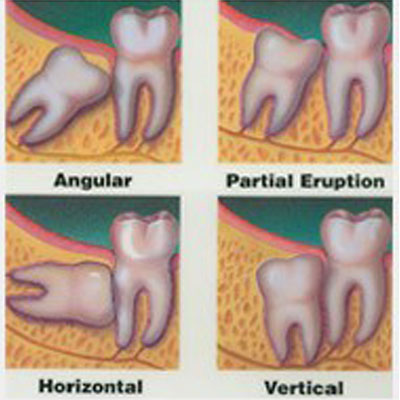 Oral Surgery and Tooth Removal